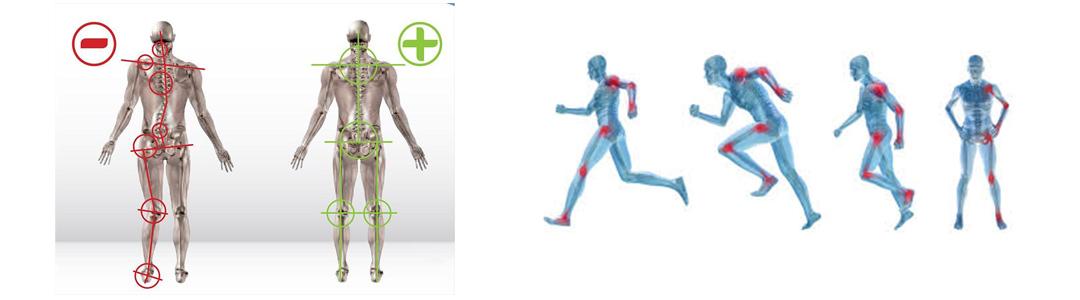 Douleurs sport et posture